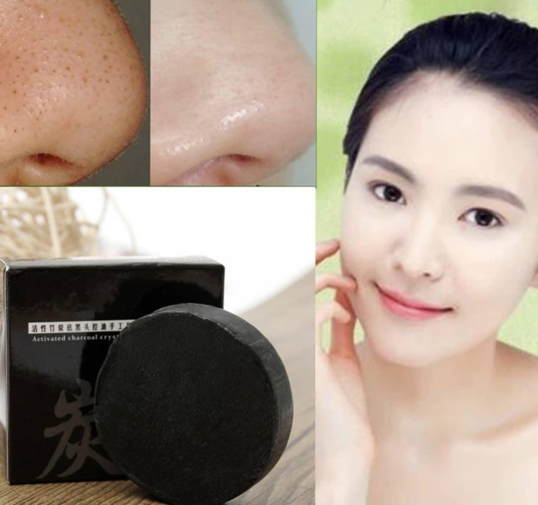 Bamboo Charcoal Soap Treats Acne